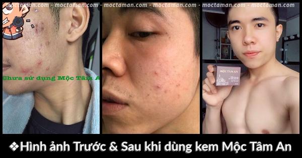 Kem Tri Mun Boc