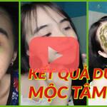 Video Kết Quả Trị Mụn Viêm Cho Bé Gái Thành Công